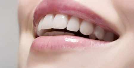 طراحی لبخند ، اصلاح طرح لبخند