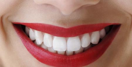 بهبود زیبایی لبخند