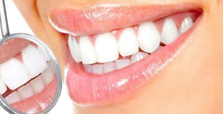 سفید کردن دندان (بلیچینگ)