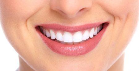 لیمینت دندان ، لمینت دندان